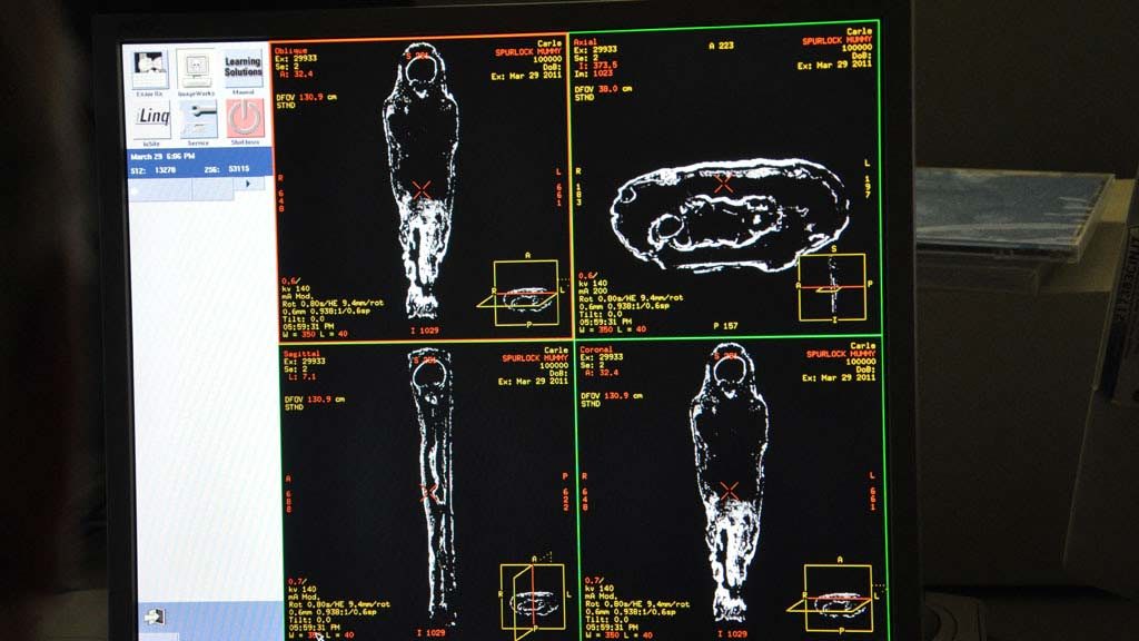 CT imaging data as it appears on the screen during the scan. outlines