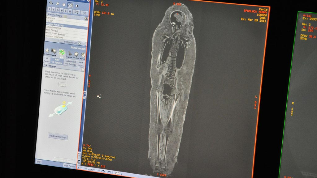 The mummy's skeleton as shown through the CT scan.
